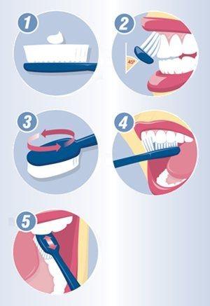 圖五、使用貝氏刷牙方式並使用牙線,才能避免牙周病
