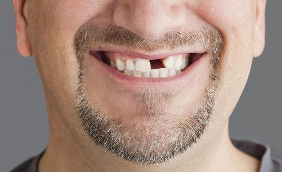 一旦缺牙易引發多重健康問題