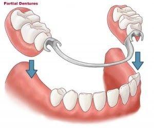 活動式假牙