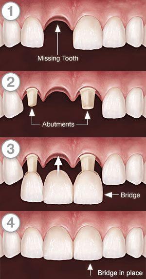 固定式假牙-牙橋