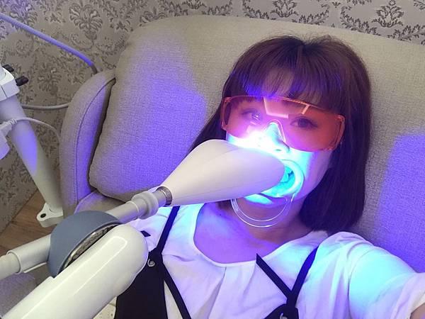 牙齒美白_170821_0021.jpg
