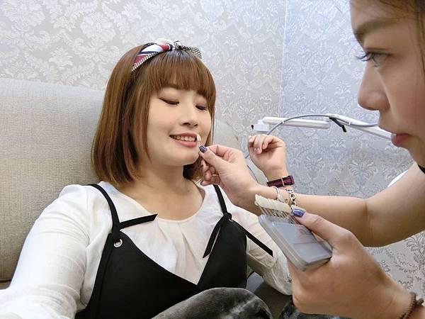 牙齒美白_170821_0024.jpg