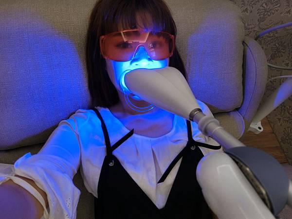 牙齒美白_170821_0023.jpg