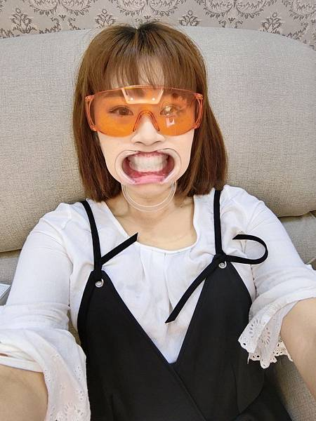 牙齒美白_170821_0029.jpg