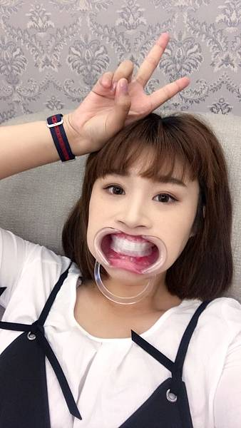 牙齒美白_170821_0028.jpg