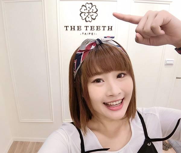 牙齒美白_170821_0033.jpg