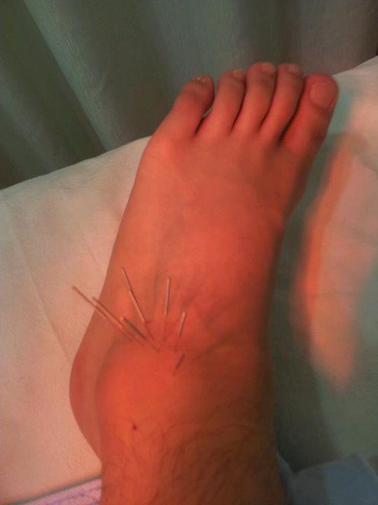 0926受傷的腳.jpg