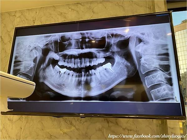 美德美學牙醫診所_0019.jpg