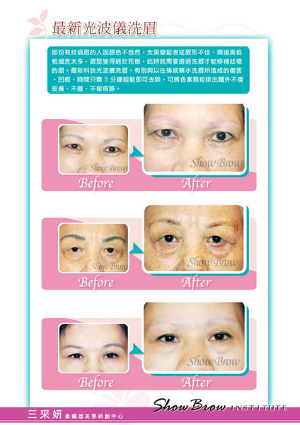 科技光波儀洗眉