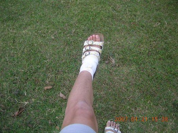 受傷的腳兒