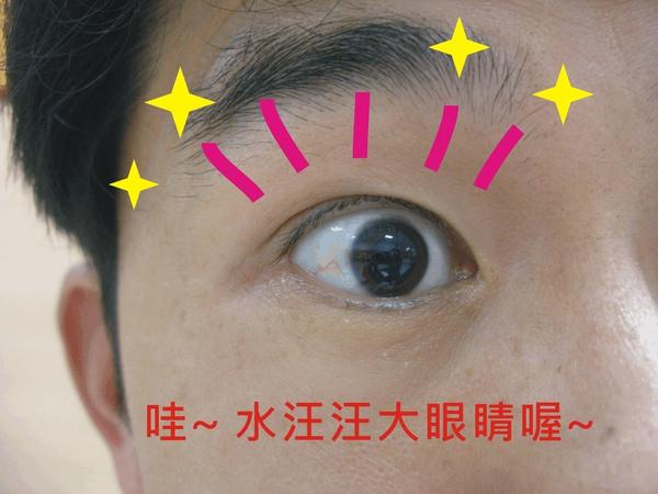 視網膜檢查