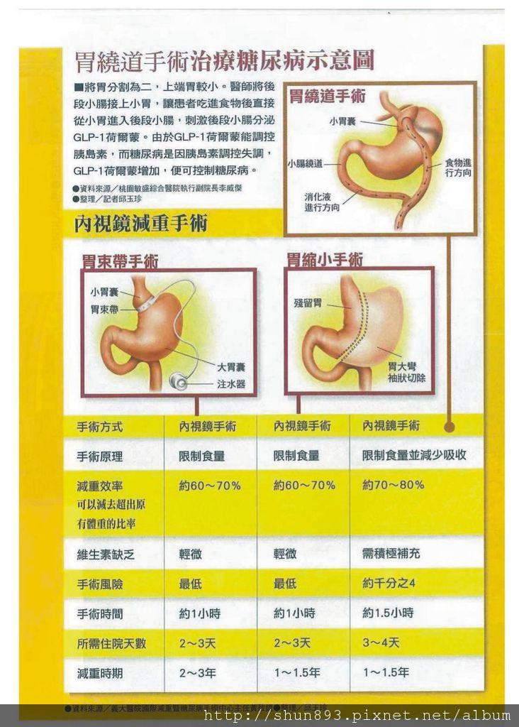 腸胃道重建治療糖尿病