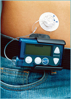 胰島素幫浦