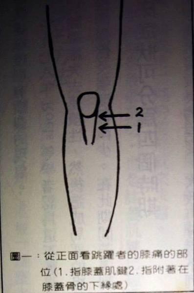 膝蓋骨2.jpg