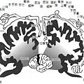 大腦軀體感覺區功能對應圖.jpg