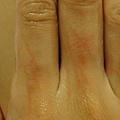 被綠刺蛾幼蟲毒到的手(3.5小時候的樣子)