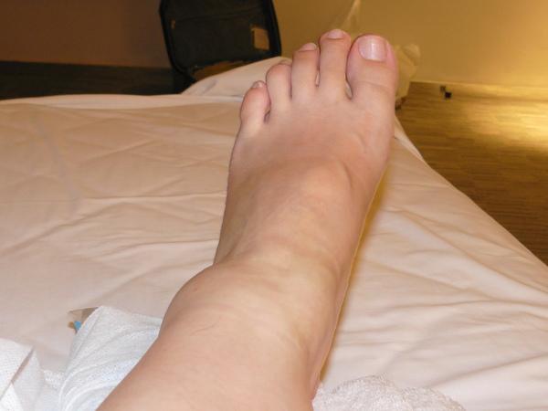 扭傷的腳踝.JPG