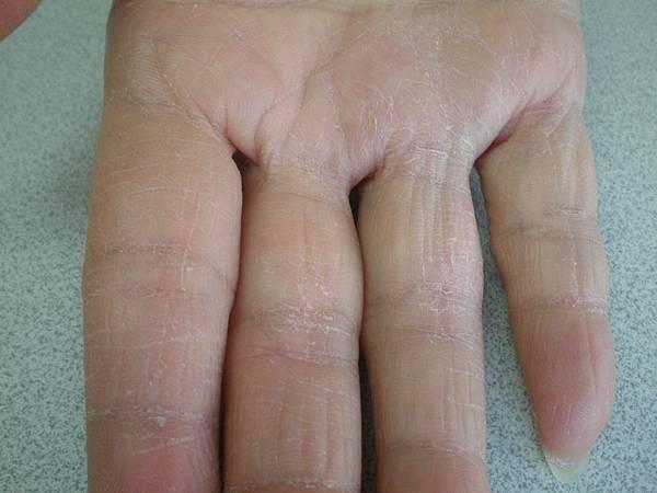 皮膚問題 洗手液與熱水