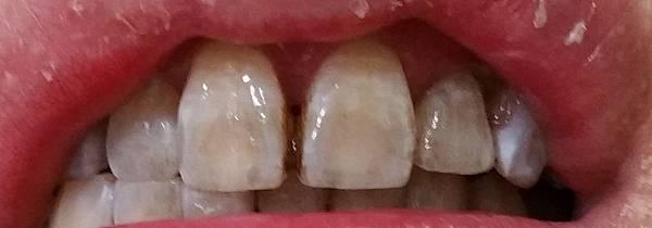 四環素牙.jpg