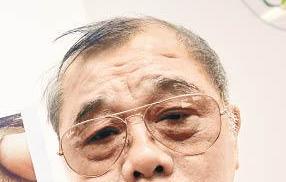 69歲翁白內障術後一年 始揭未拆線