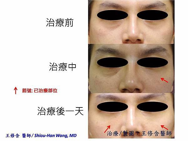 皮膚科王修含醫師研發之淚溝靭帶調整填充術