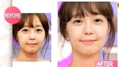 韓國人臉部做拉提效果