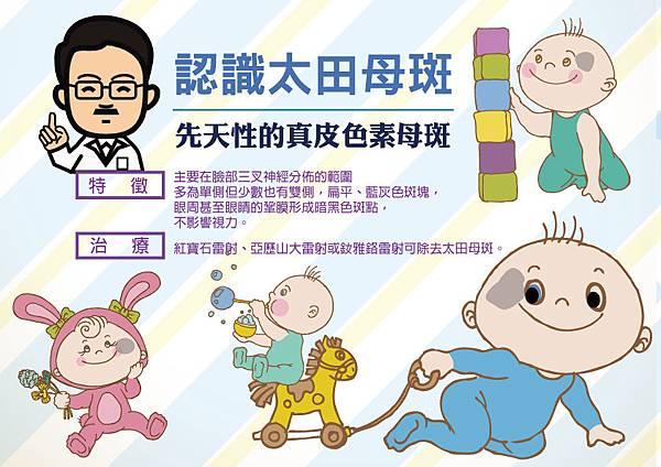 太田母斑雷射治療-嬰兒胎記雷射