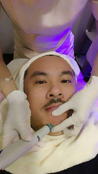 張英睿時尚美肌水飛梭HydraFacial™