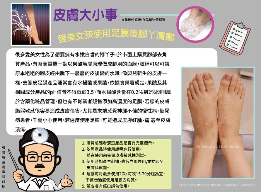 【皮膚大小事】愛美女孩使用足膜後腳丫潰瘍