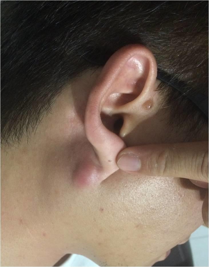 表皮囊腫-粉瘤