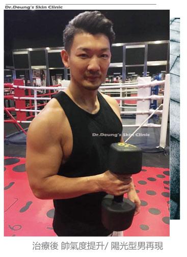 健身型男初體驗-全新情感美學治療概念-玻尿酸微整抗老BANNER05.jpg