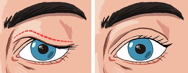 Sagging eyelids.png