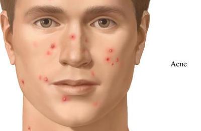 acne_400