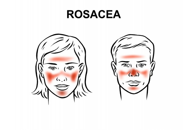 rosacea-disease-overview_reference.jpg