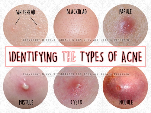 identifying types of acne.jpg