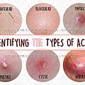 identifying types of acne.jpg