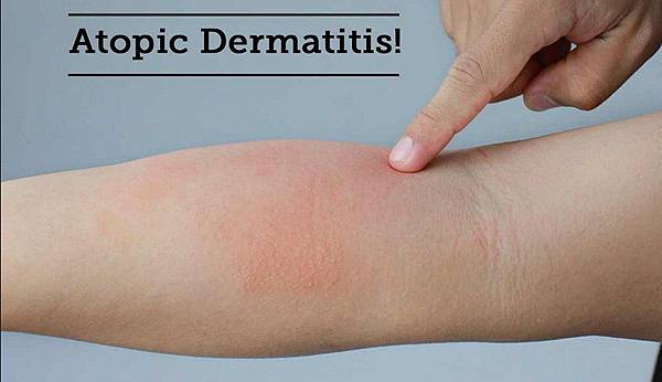 Atopic-dermatitis-causes.jpg