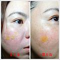 全方位痘疤治療8