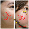 全方位痘疤治療9