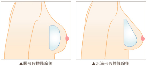 水滴形矽膠隆乳2