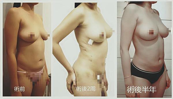 自體脂肪隆乳+Vaser威塑抽脂