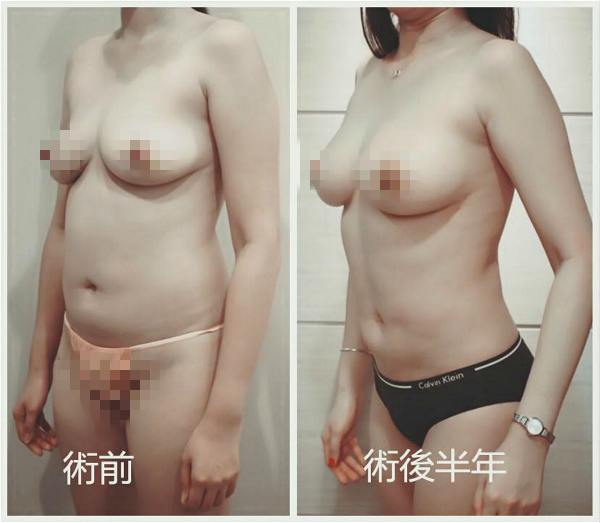 自體脂肪隆乳+Vaser威塑抽脂11