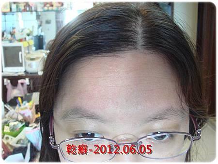 乾癬-2012.06.05額頭