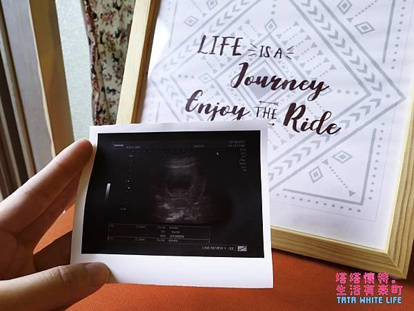 塔塔懷特懷孕紀錄,孕婦保養品葉酸綜合維他命dha鈣片推薦,媽媽奶粉分享-1120158.jpg