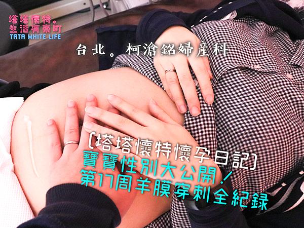 【塔塔懷特懷孕日記】台北柯滄銘婦產科:寶寶性別大公開!第17周羊膜穿刺紀錄,現場排隊、網路預約、費用與注意事項分享,有一點點痛,但不用緊張的羊膜穿刺經驗分享!