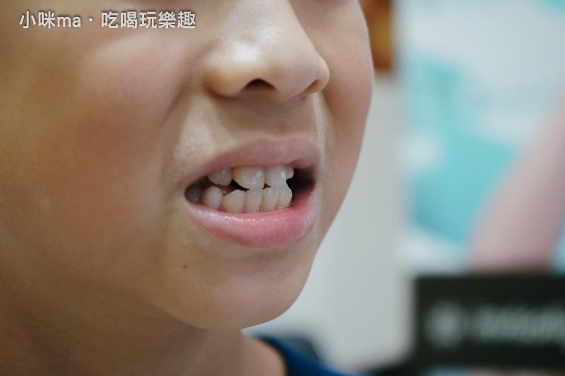 新莊牙科推薦