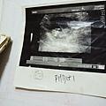 透視出生的奧秘03