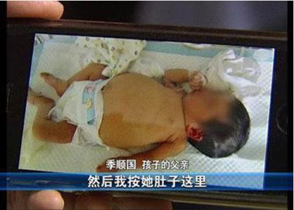 女嬰懷了胎中胎 初生嬰罕見啤酒肚