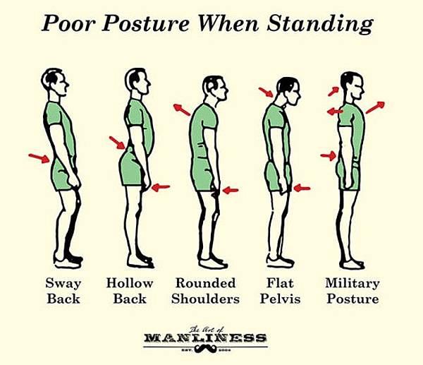 Poor-Posture-Standing-2.jpg