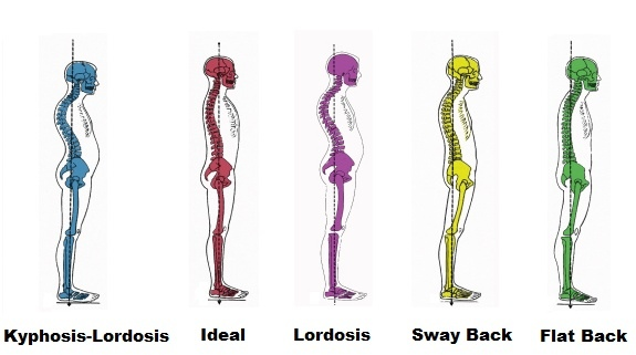 spine-alignments.jpg